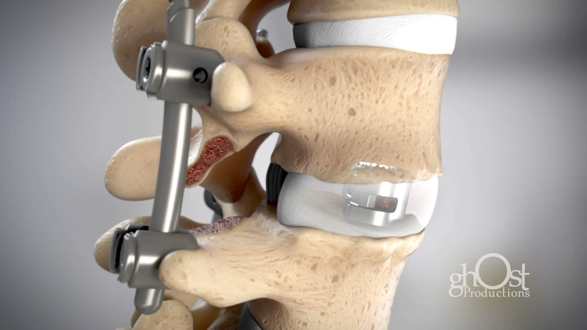 DePuy Synthes Unleash MIS TLIF System